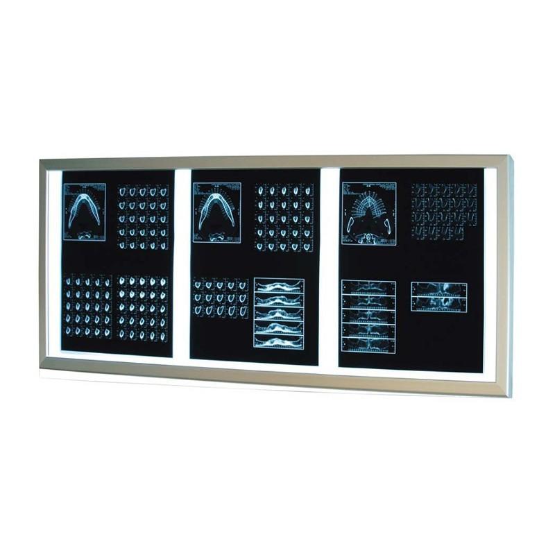 Επιτοίχιο διαφανοσκόπιο τριπλό Weiko SLIM LED -Διαφανοσκόπια - Διαγνωστικά Set - Κλίβανοι Αποστείρωσης
