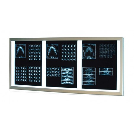 Επιτοίχιο διαφανοσκόπιο τριπλό Weiko SLIM LED
