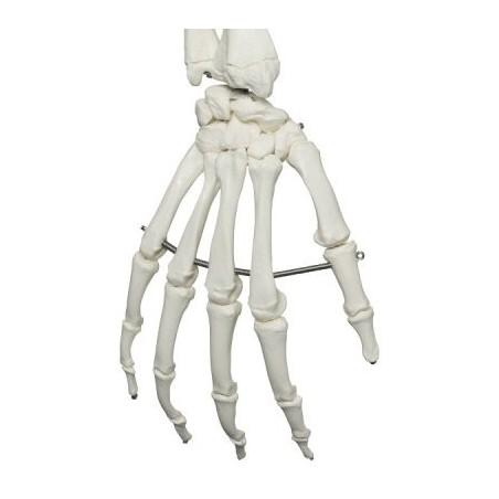 Πρόπλασμα ανθρώπινου σκελετού. -Συσκευές λεμφοιδήματος - Πελματογράφος -Προπλάσματα