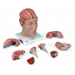 Πρόπλασμα ανθρώπινου εγκεφάλου. -Συσκευές λεμφοιδήματος - Πελματογράφος -Προπλάσματα